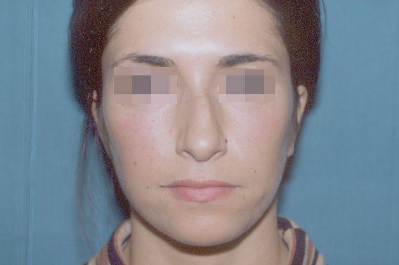 Before-Rinoplastica