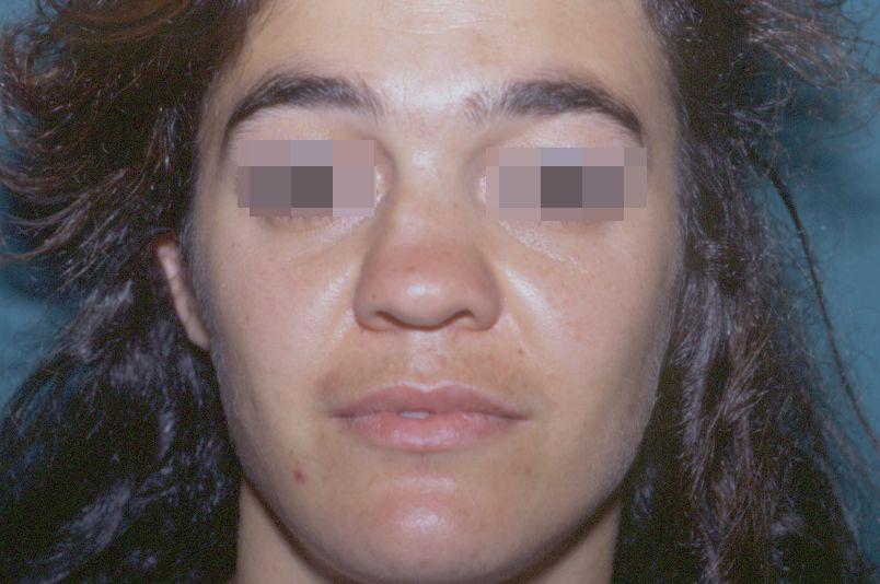 Before-Rinoplastica1