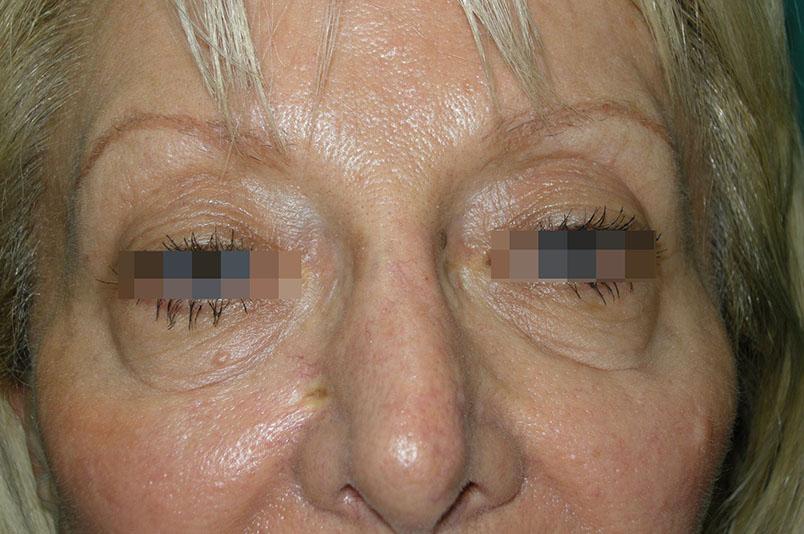 After-blefaroplastica1