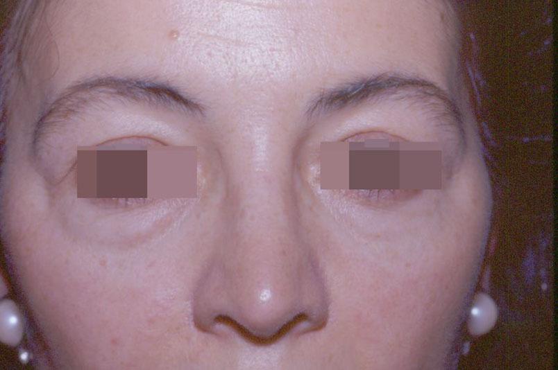 After-blefaroplastica6