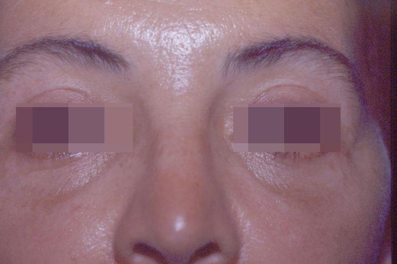 Before-blefaroplastica6