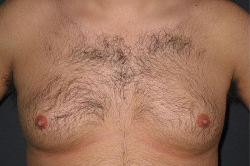 Before-Ginecomastia1
