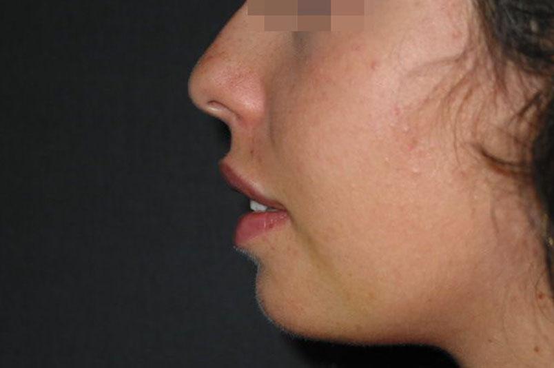 After-mentoplastica1