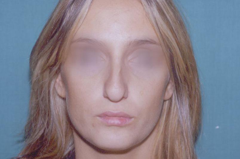 Before-rinoplastica6