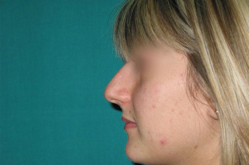 Before-rinoplastica7