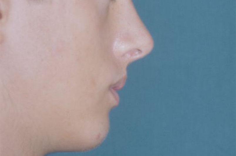 After-Profiloplastica