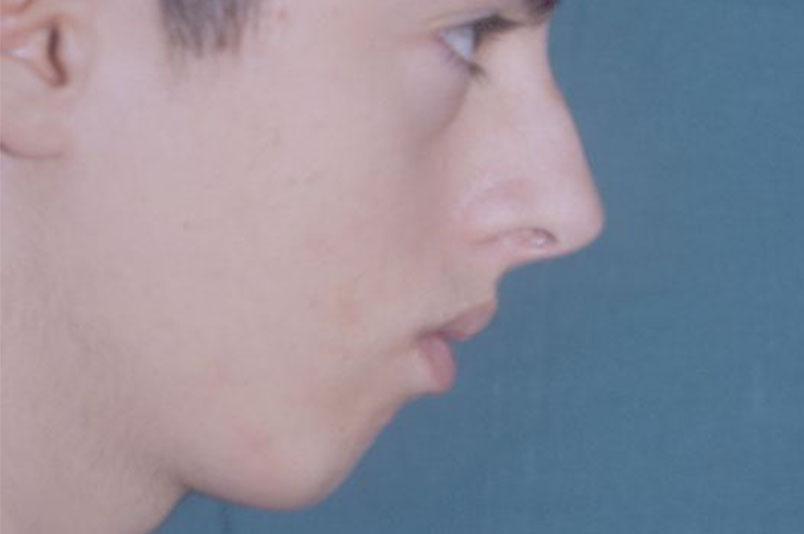 Before-Profiloplastica